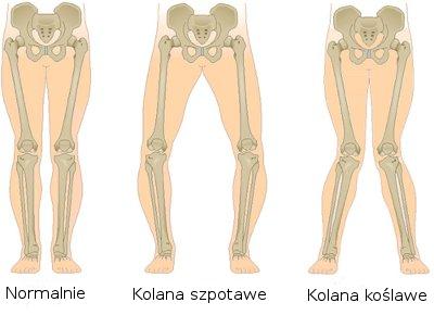 Deformacje kolan