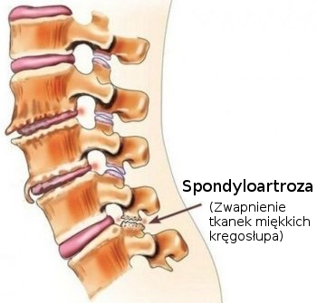 spondyloartorza
