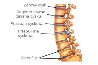osteofity, przepuklina